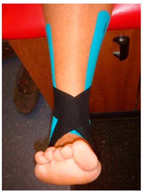 JFMK | Free Full-Text | Effect of Kinesio® Taping on Ankle